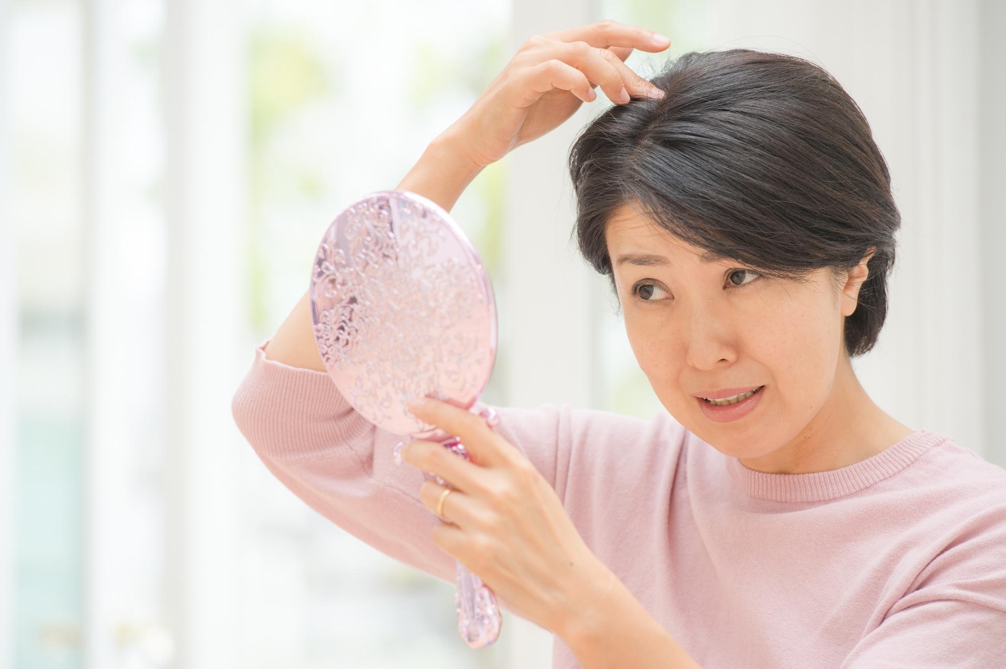 女性特有の薄毛FAGAの原因と治療法は?