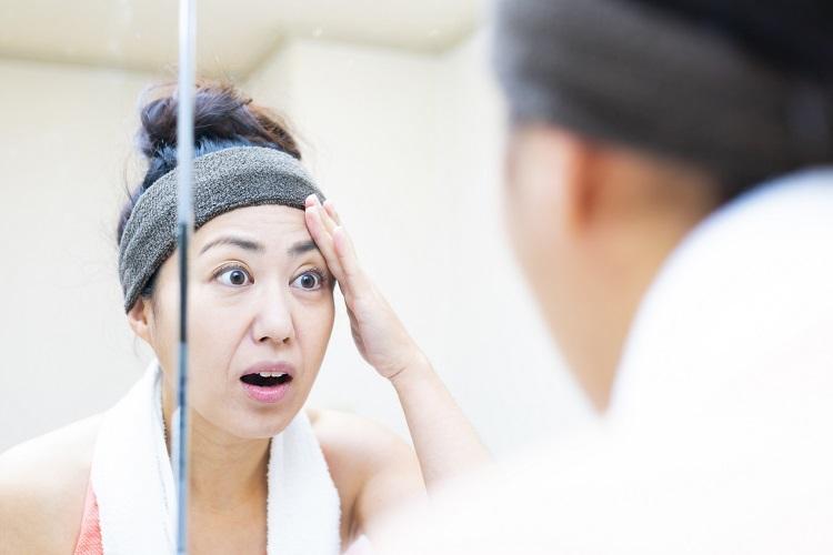 【クリニック監修】どうして抜ける?ちゃんと治る? 女性の円形脱毛症