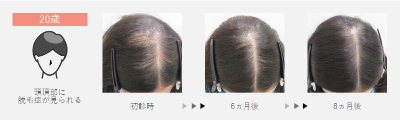 20歳:頭頂部に脱毛症が見られた女性の場合