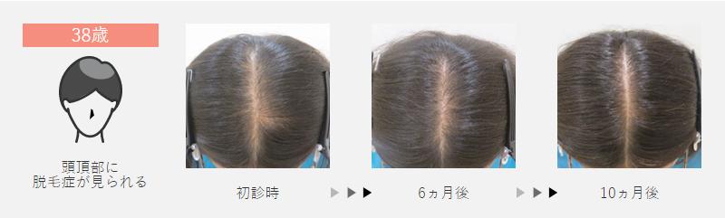38歳:頭頂部に脱毛症が見られた女性の場合