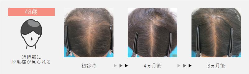 48歳:頭頂部に脱毛症が見られた女性の場合