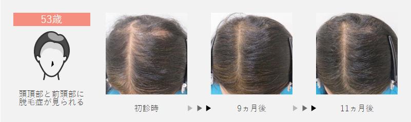53歳:頭頂部と前頭部に脱毛症が見られた女性の場合
