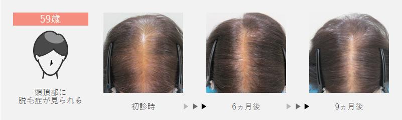 59歳:頭頂部に脱毛症が見られた女性の場合