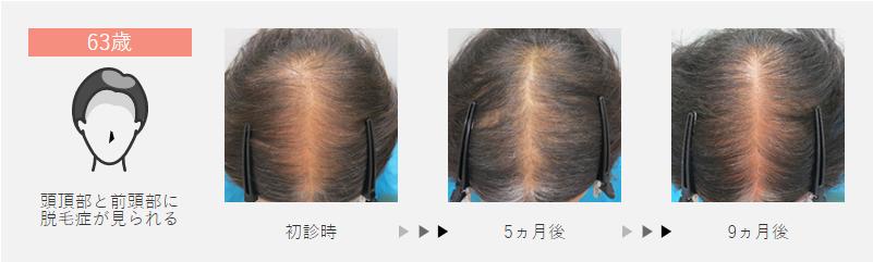 63歳:頭頂部と前頭部に脱毛症が見られた女性の場合