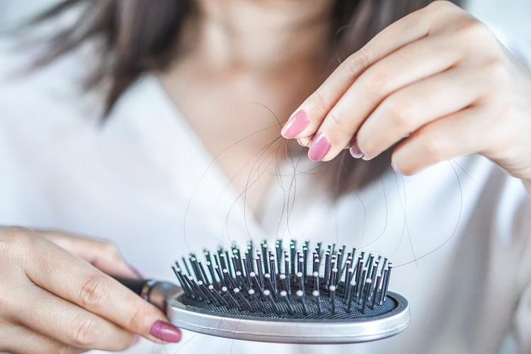 【クリニック監修】髪が薄い!女性の抜け毛の原因と対策を知りたい!